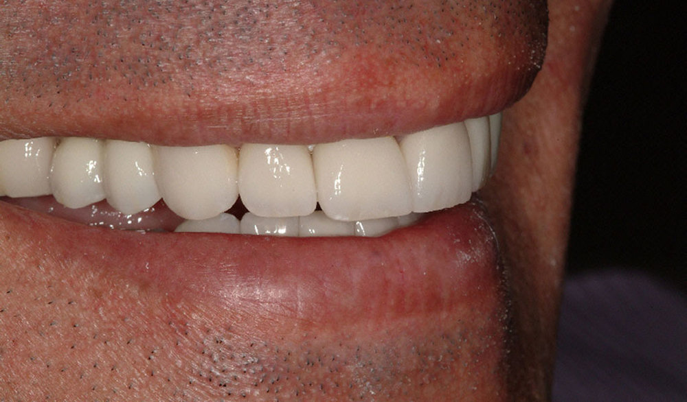 After Dr. Victor A. Martel repaired this person's smile