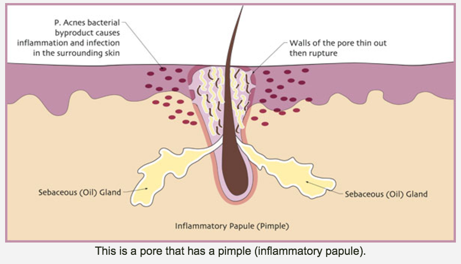 What Is Acne Pure Dermal Care