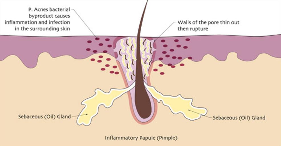 Pimples Pustules Cysts Pure Dermal Care