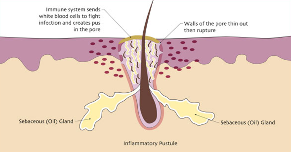 A Pustule Is A Pimple That Has Come To A Head It Is Different From A Pimple Only In That It Contains White Blood Cells When The Immune System Fights Off