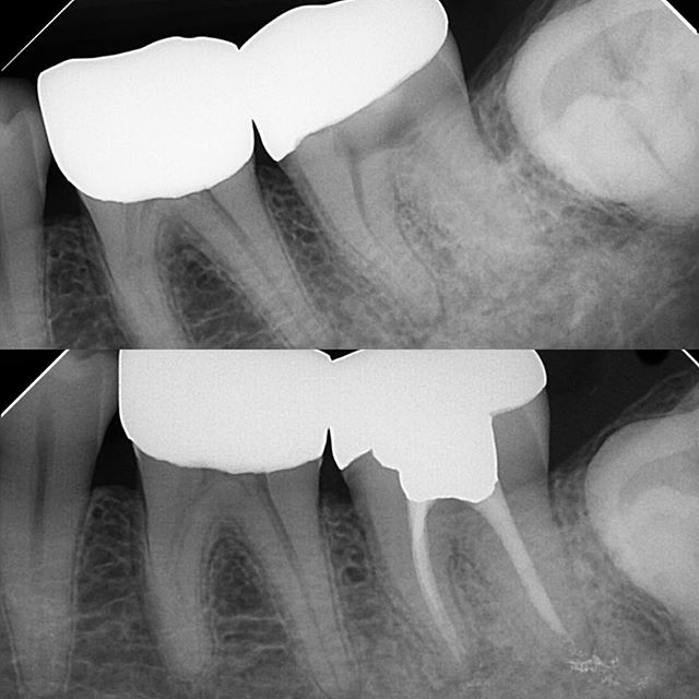 #18 RCT: SIP/SAP one of the first molar endo cases I did as an AEGD resident. Access through full gold crown, rotary and warm vertical on M canals and hand instrumentation and cold lateral on D canal. Some CaOH remaining near the apex that was extruded after the pulpectomy. Restored with amalgam. 🤓👉🏻 Authors ElAyouti, Weiger suggest that complementing radiographic WL w/ apex locator helps avoid overestimation beyond apical foramen. Radiographic working length determination alone resulted in overestimation in 51% of the root canals, ☝🏻even when the measuring file tip was located to be 0 to 2 mm short of the radiographic apex.