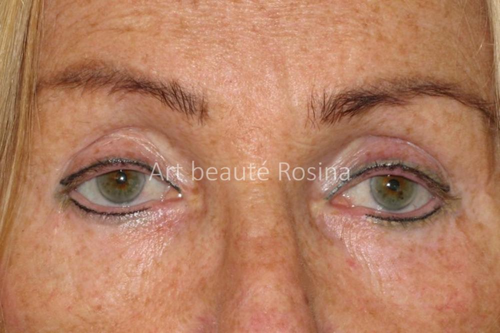 Pigmentation des eyeliners haut et bas après plusieurs séances de camouflage