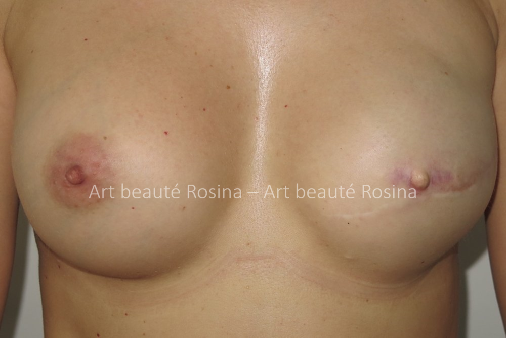 Reconstruction sein gauche par prothèse mammaire après un cancer du sein