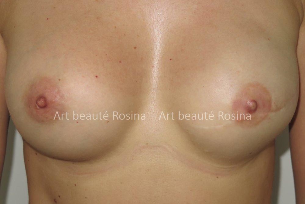 Résultat 1 mois après la pigmentation de l'aréole et du mamelon en 3 D