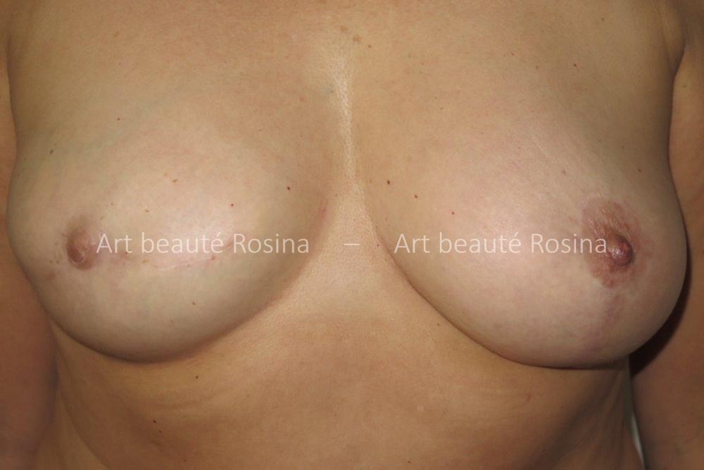 Reconstruction sein droit par prothèse mammaire après un cancer du sein