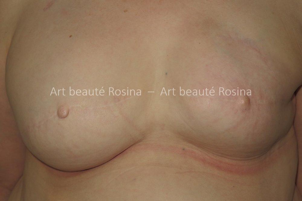 Reconstruction bilatérale par prothèses mammaires après un cancer du sein