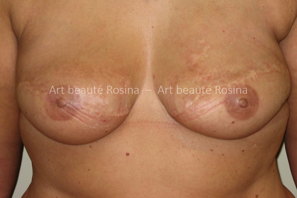 Résultat 1 mois après la pigmentation des aréoles et mamelons en 3 D