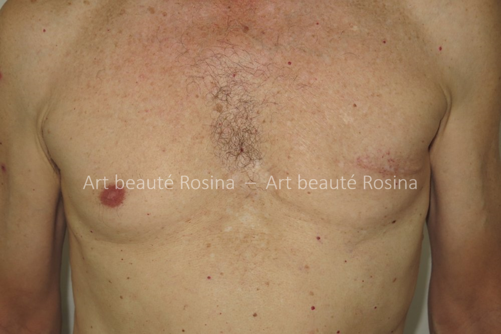 Ablation de l'aréole après un cancer du sein chez un homme