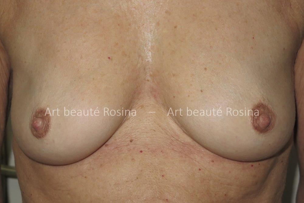 Résultat 1 mois après avoir foncé les aréoles et mamelons - le galbe du sein est valorisé