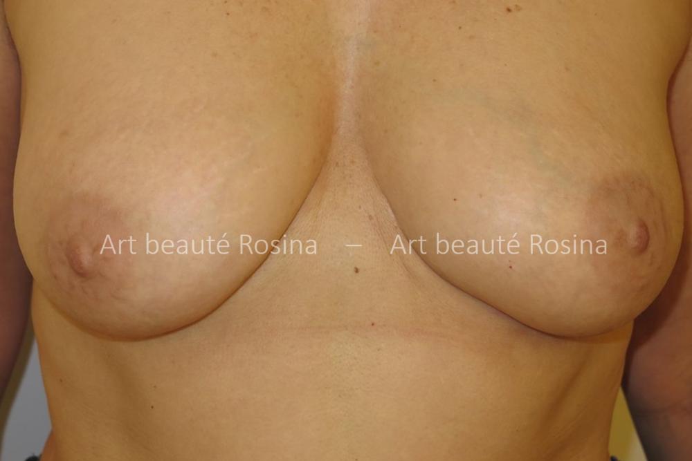 Résultat 1 mois après la pigmentation des aréoles et mamelons plus foncés - le galbe du sein est valorisé
