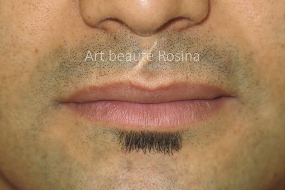 Cicatrice entre le nez et la lèvre supérieure