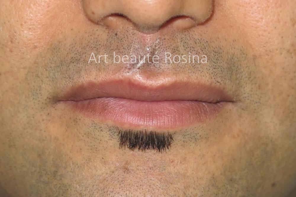 Cicatrice camouflée couleur de la peau et poils de barbe repigmentés