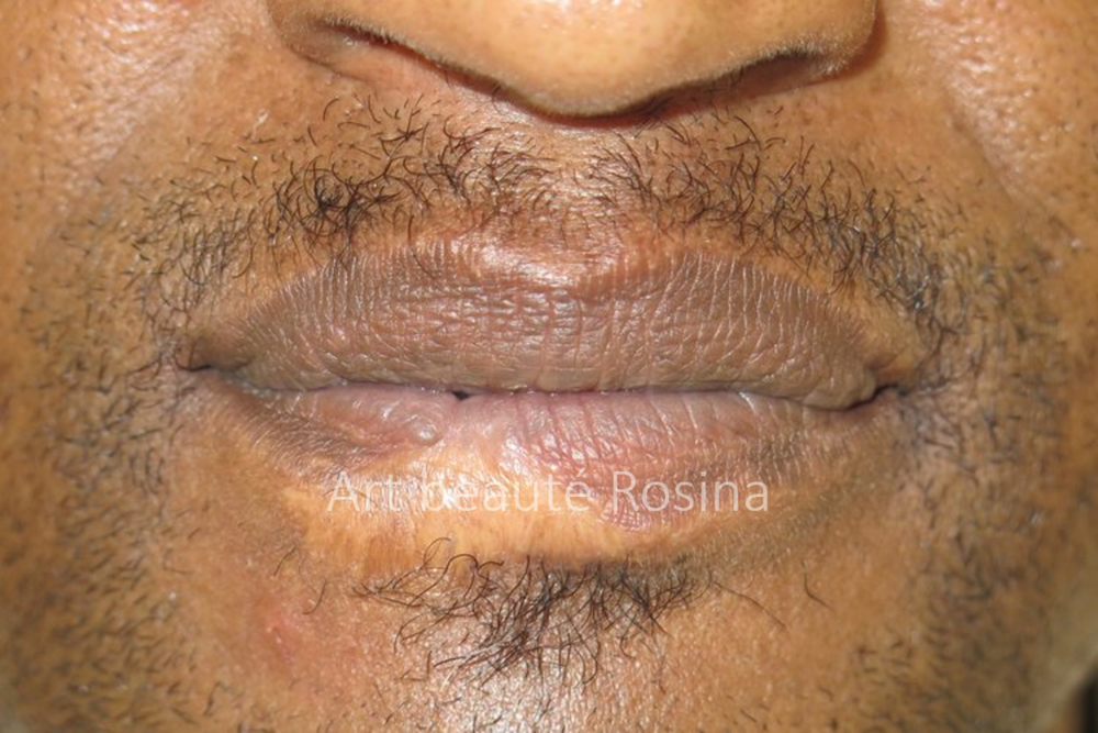 Cicatrice sur la lèvre inférieure