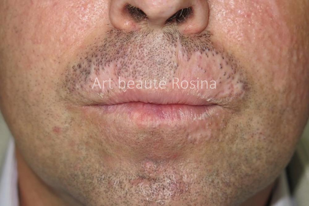 Perte de poils de barbe liée aux cicatrices de brûlures