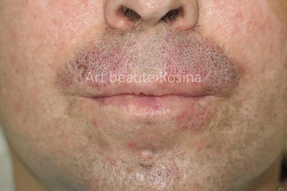 Pigmentation de poils de barbe sur la moustache et sous la lèvre inférieure (à droite sur la photo)