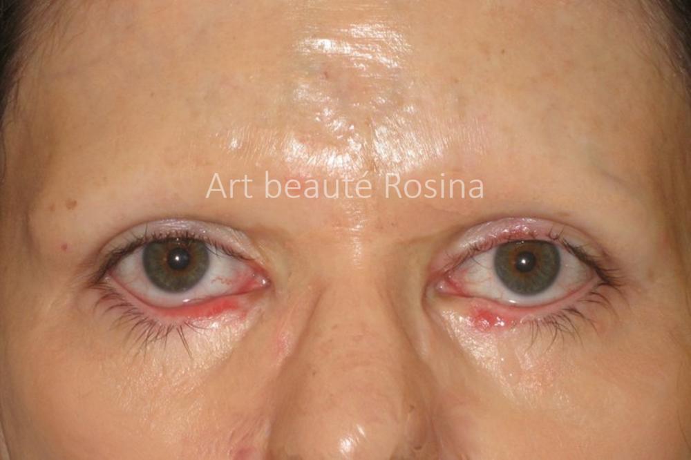 Disparition des sourcils après la brûlure