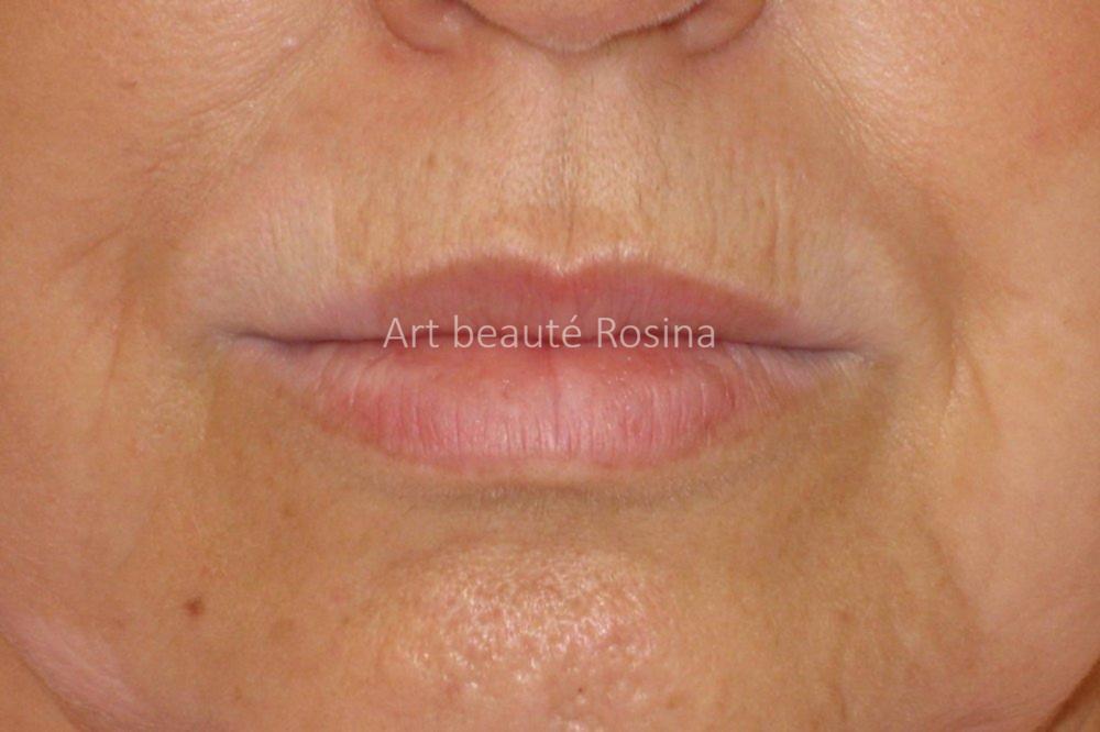 Vitiligo sur les lèvres