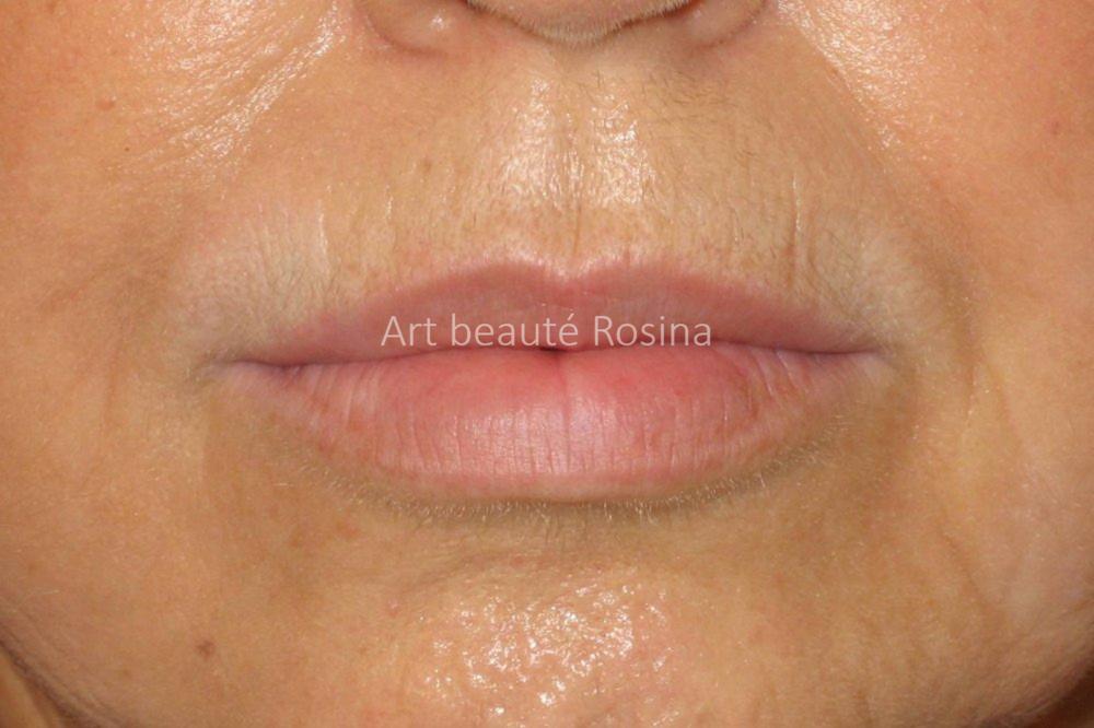 Résultat après 1 mois - contour des lèvres avec estompe couleur naturelle
