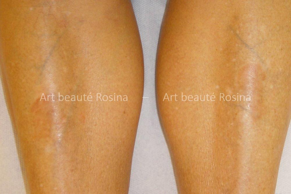 Résultat 1 mois après la pigmentation des taches de vitiligo