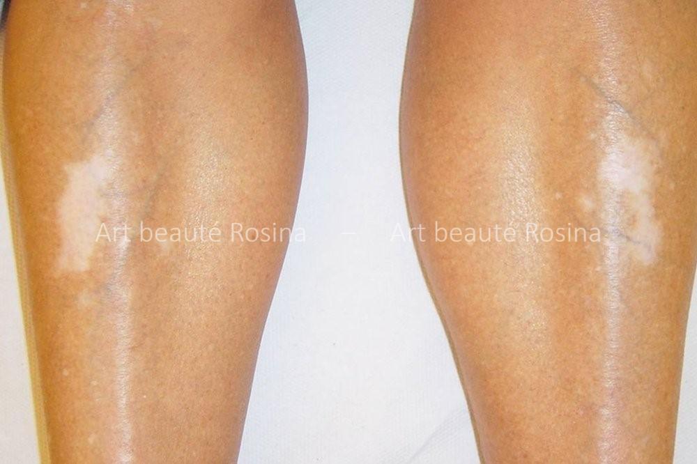 Vitiligo sur les jambes
