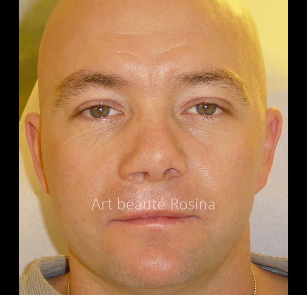 Résultat 1 mois après la pigmentation de la lèvre supérieure et le camouflage de la cicatrice