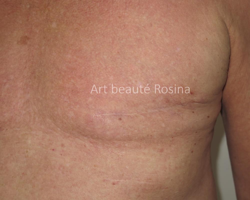Ablation de l'aréole après un cancer de la peau chez un homme