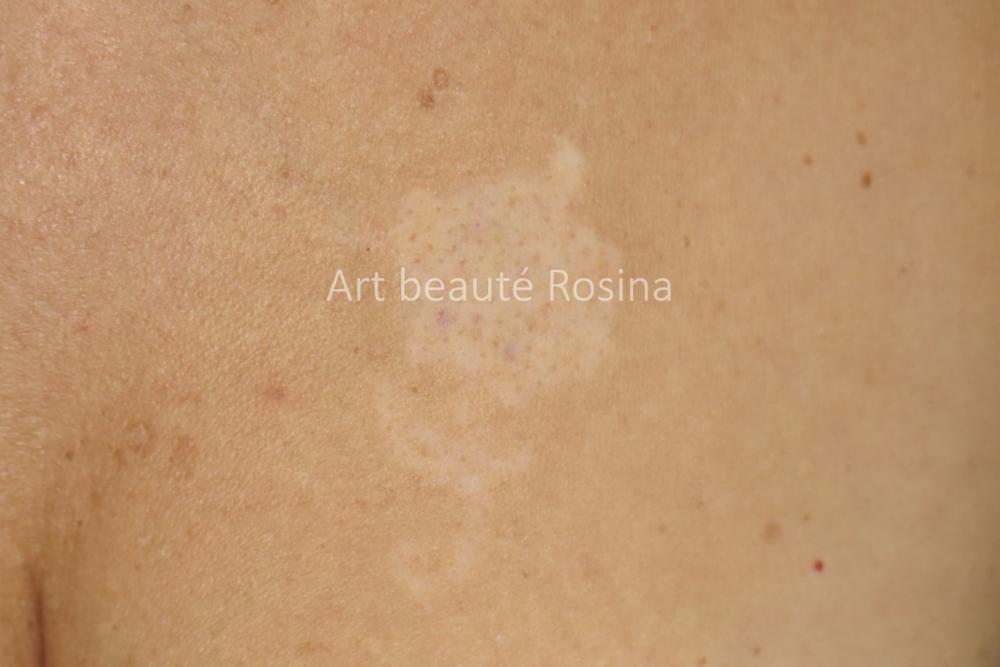Dépigmentation des suites d'un détatouage au laser d'un tattoo décoratif