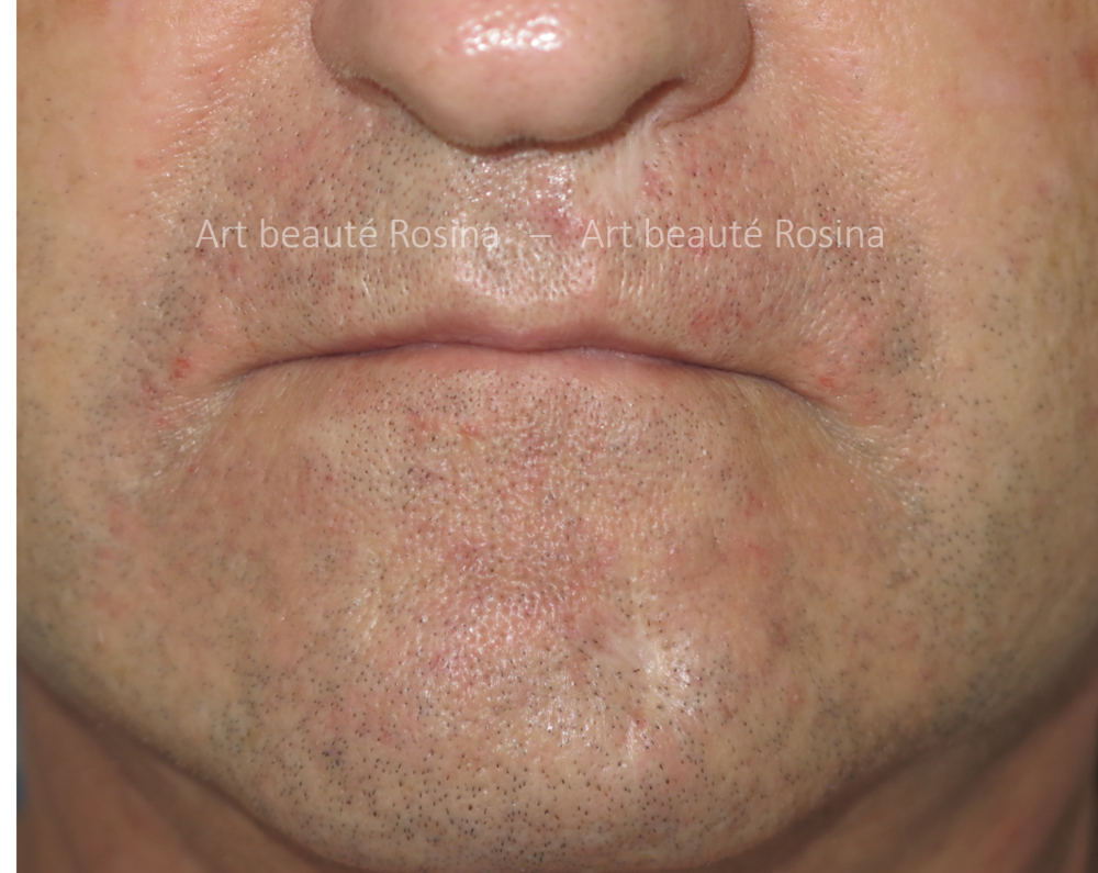 Cicatrices accident sous la narine gauche et sur la gauche du menton