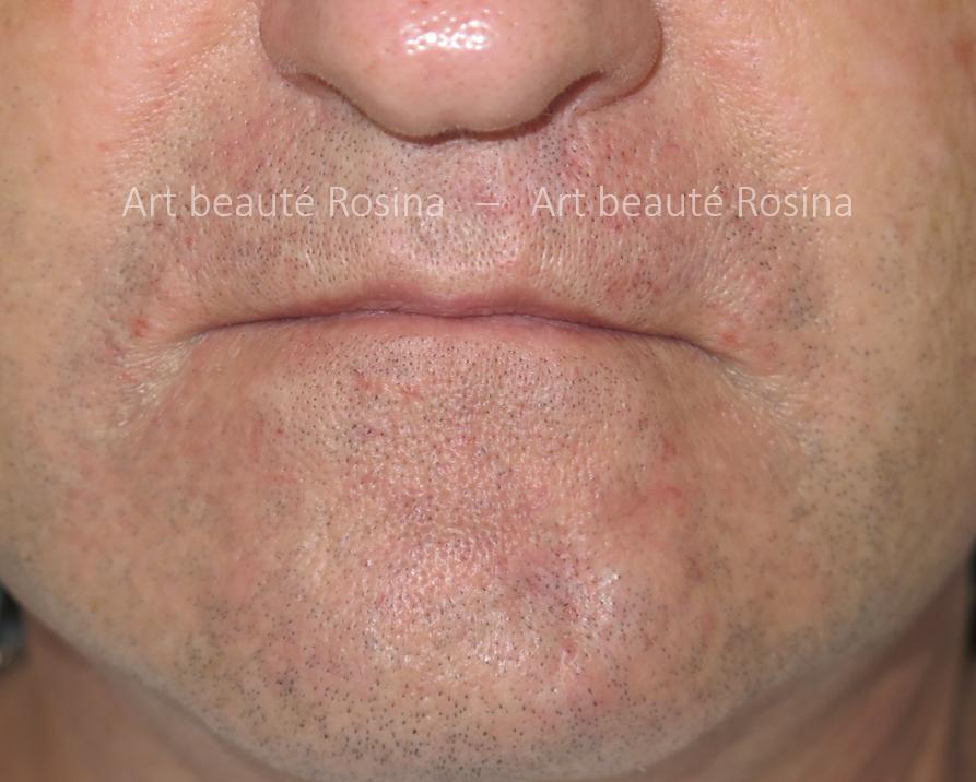 Cicatrices camouflées en pigmentant des poils de barbe