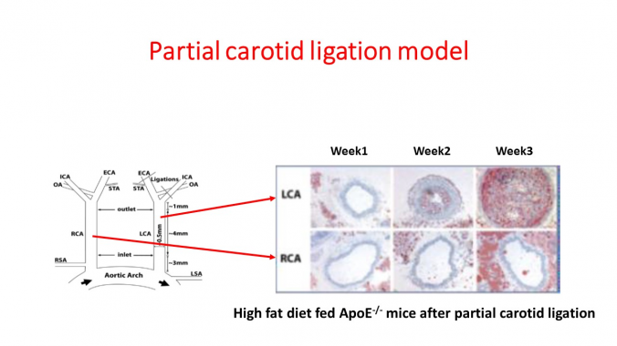Model schema and representative histology images of mouse Left and Right carotid arteries after partial ligation surgery.