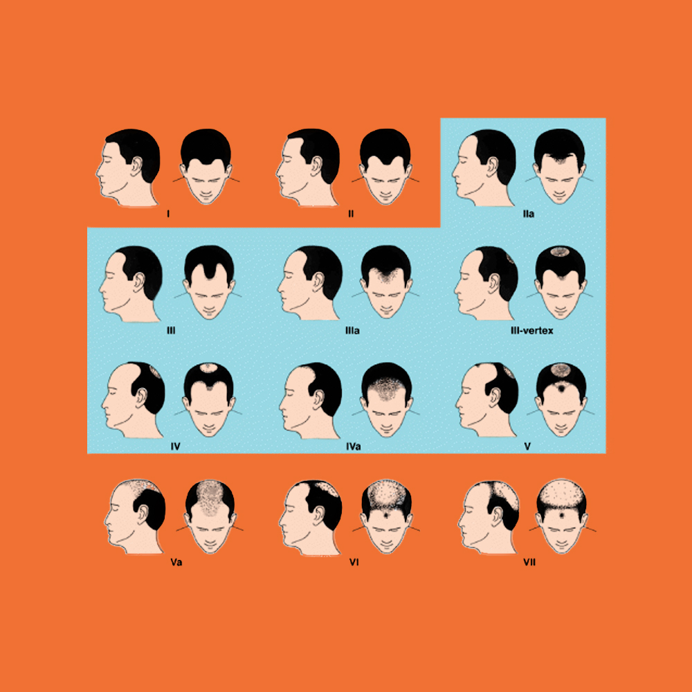 More Hair Naturally - Men's Hair Loss Chart