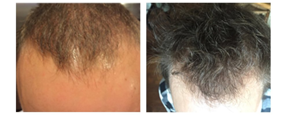 After 4 Months Of Advanced Program Usage Including More Hair Naturally 9. * Individual results may vary