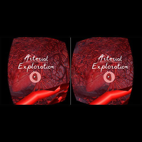 Arterial Exploration (VR) - A virtual reality learning module for Google Cardboard to teach high school students about the role of elastic tissue and smooth muscle in arteries to control blood pressure.