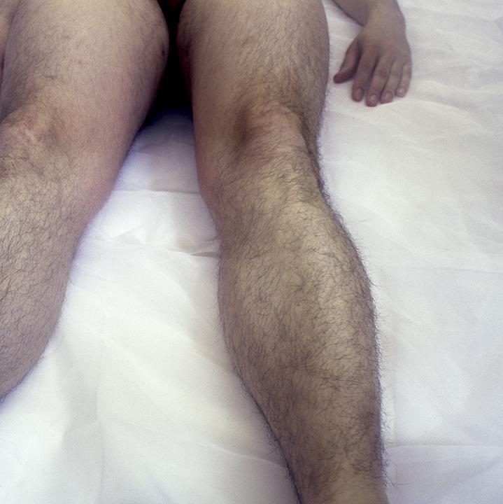 Legs I