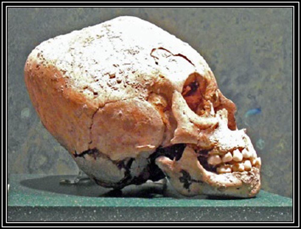Modified skull. Source:    academia.edu .