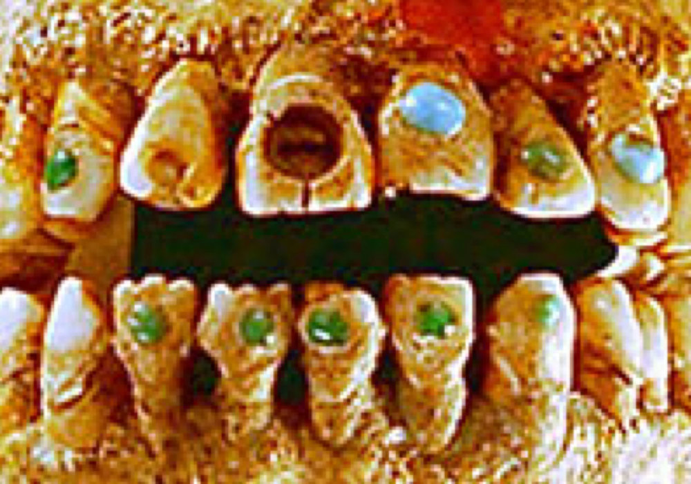G emstone inlay in Mayan mouth:     gemselect.com .