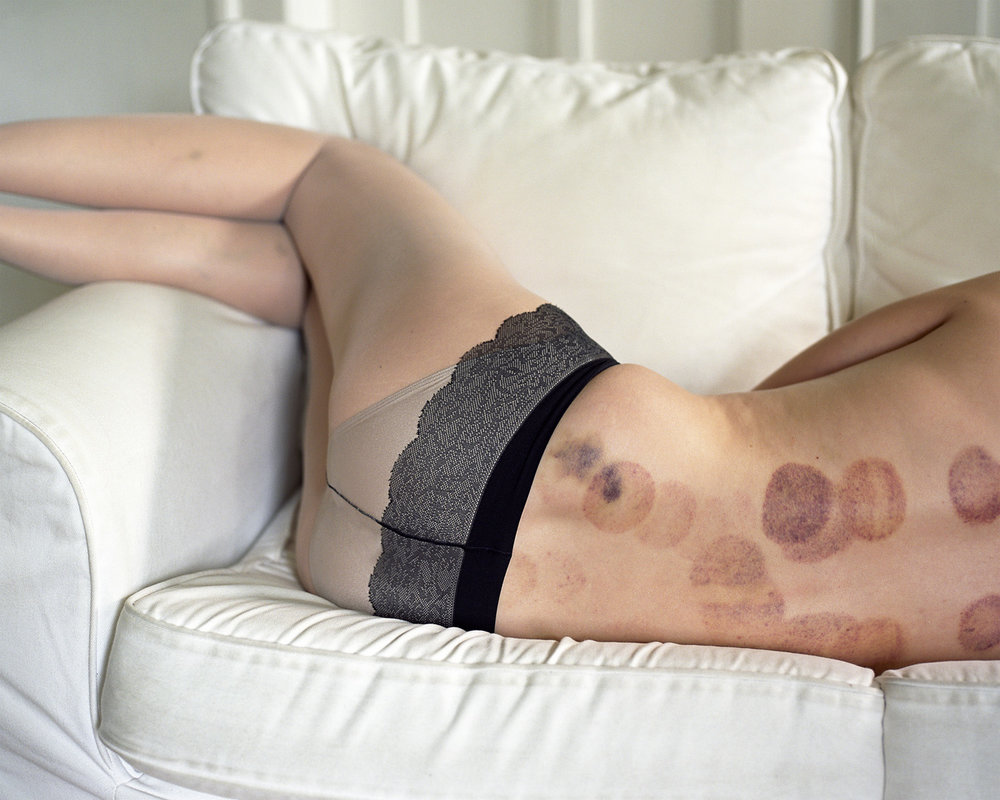 Bruises_web.jpg