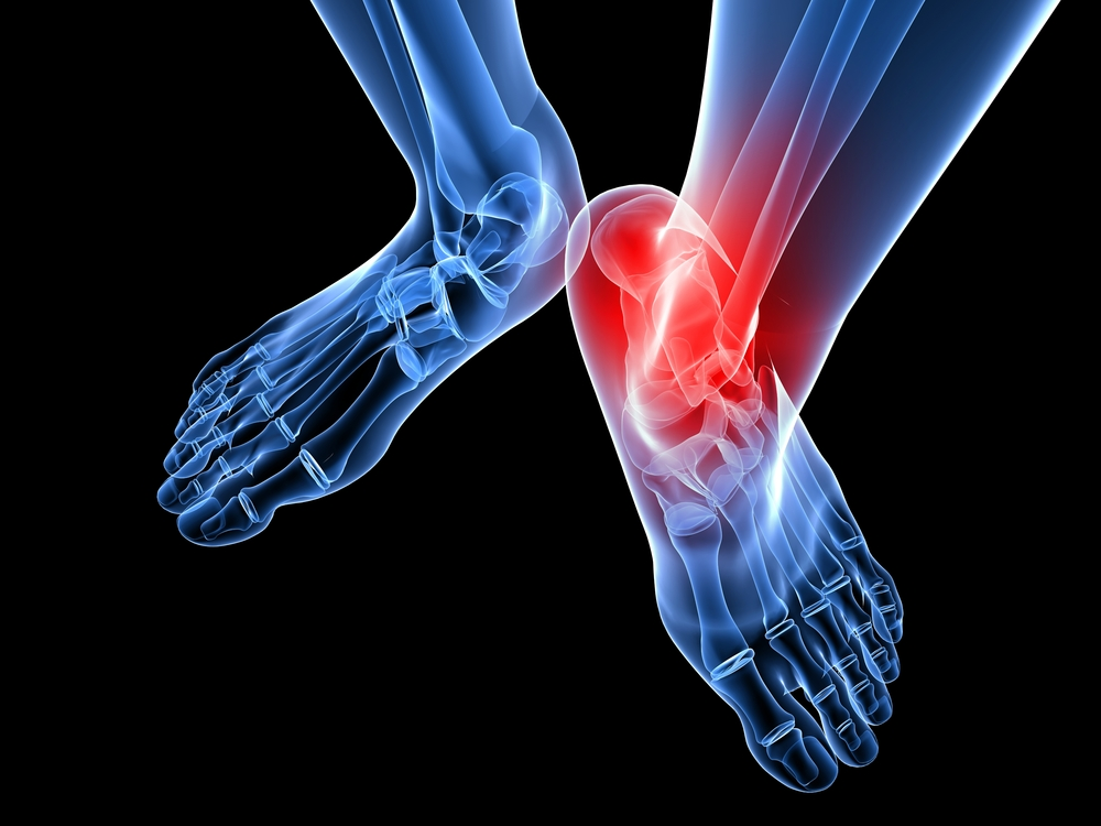 foot ankle surgery spring hill homosassa florida