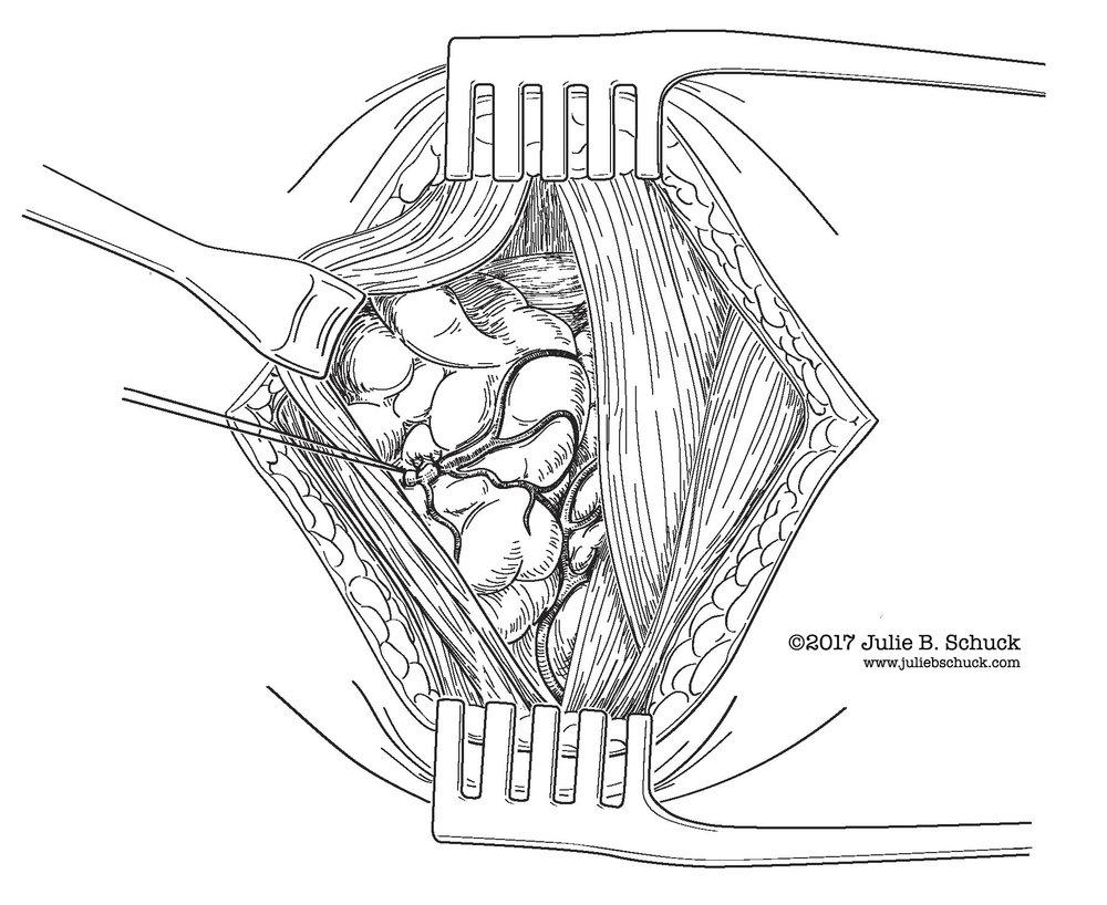 Parathyroidectomystep2.jpg