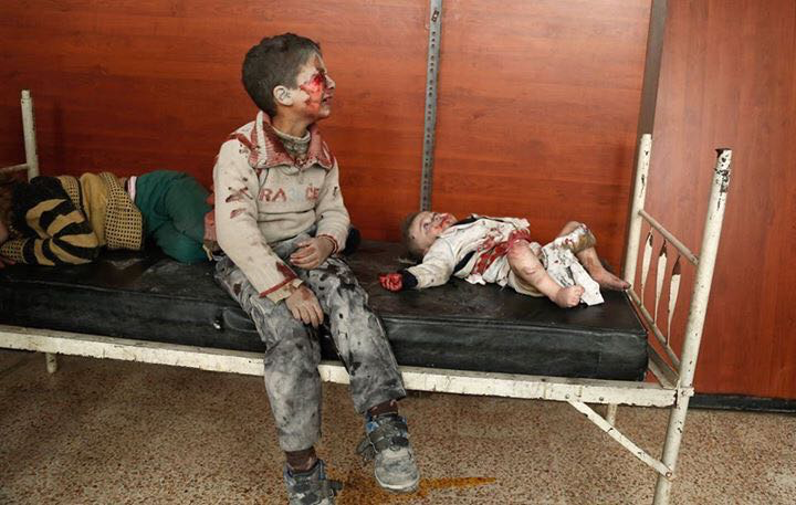 Three injured children wait for medical attention in a crowded hospital after a recent bombing.