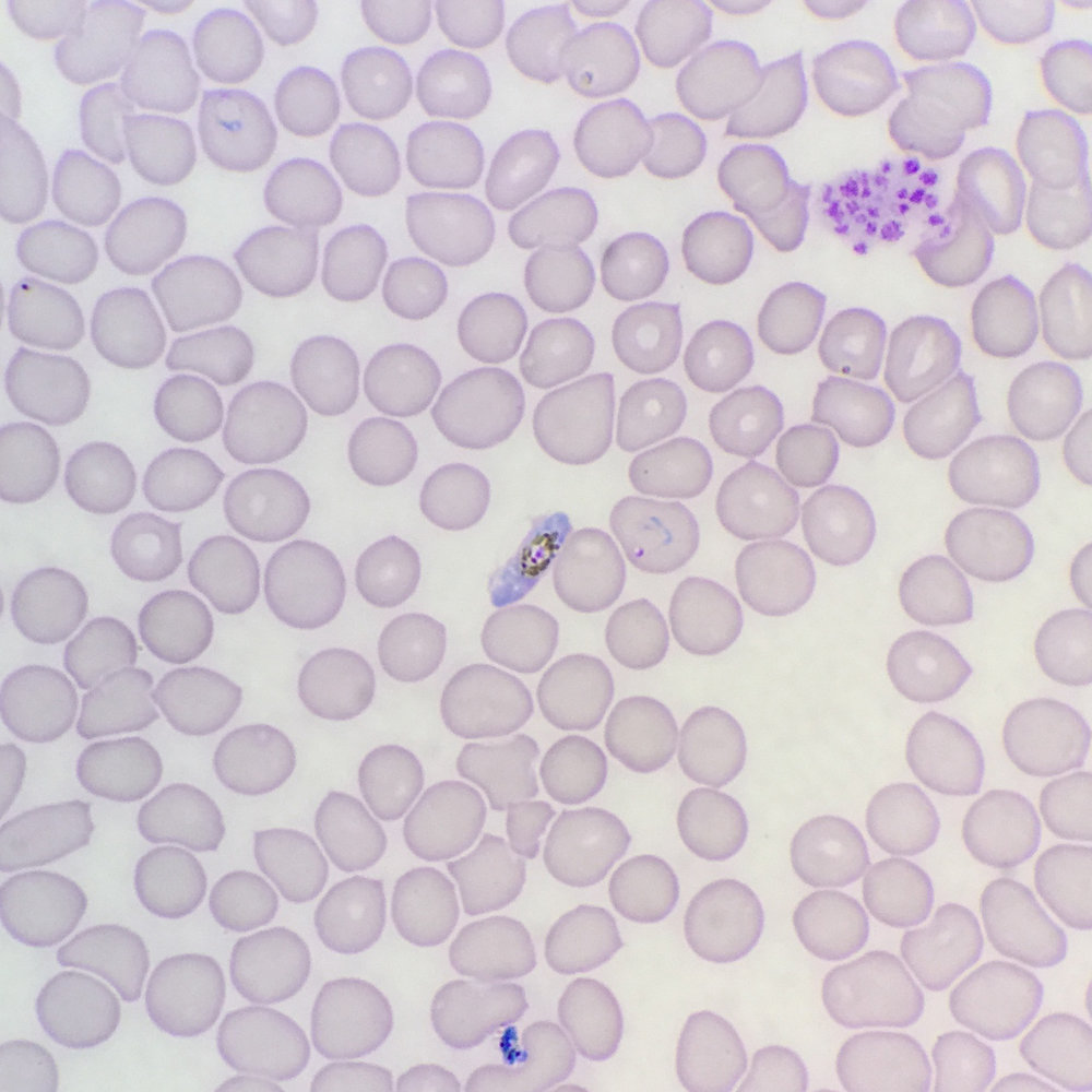 malaria-staining_crop.jpg