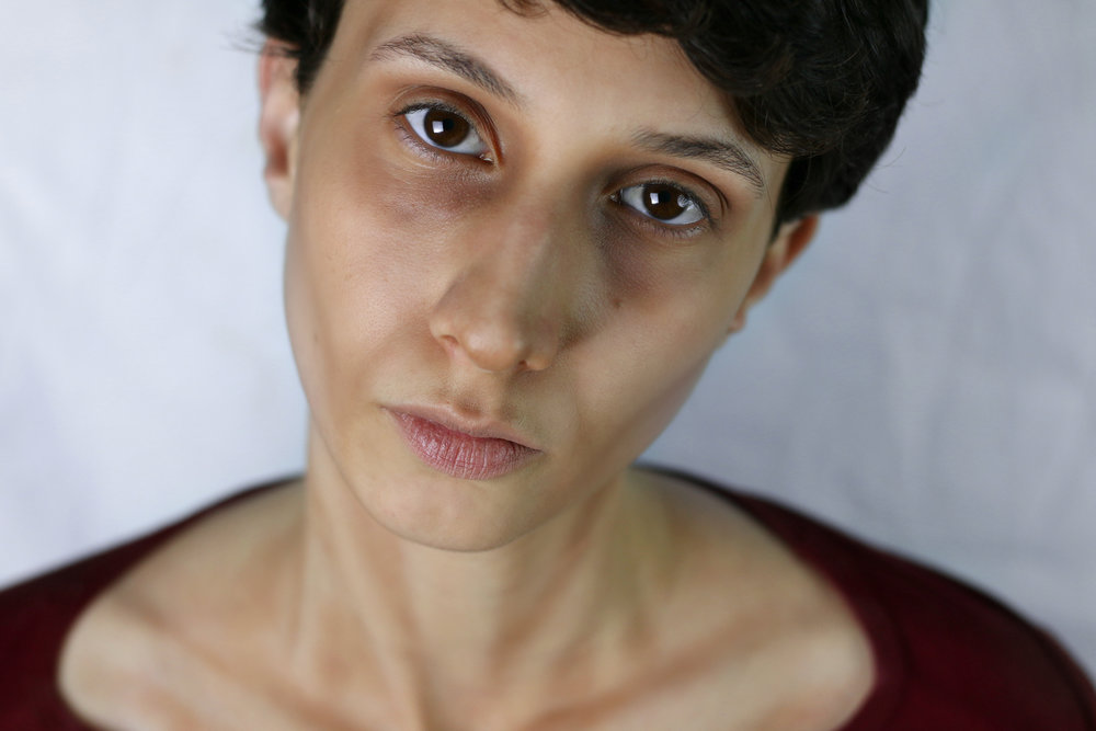 anorexia2.jpg