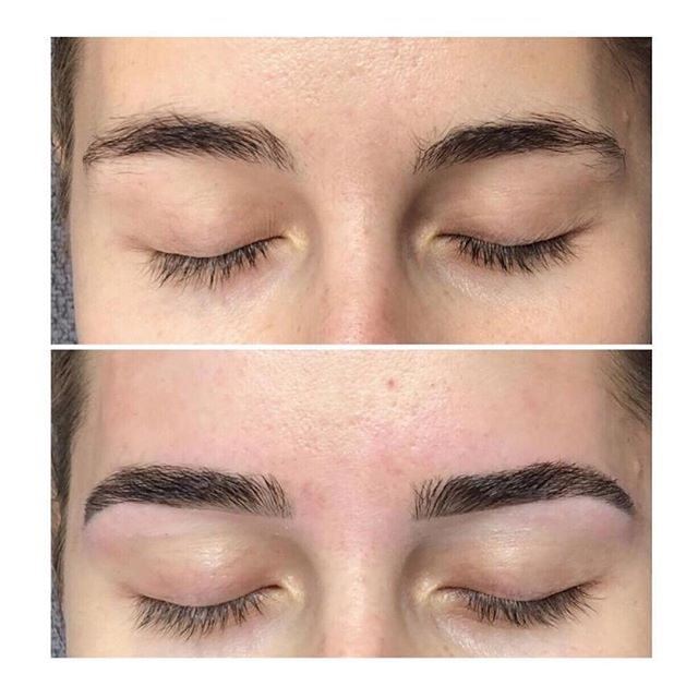 Our HD Brows provide you with natural looking eyebrows to help shape your face and give you a fresher look. ⠀⠀⠀⠀⠀⠀⠀⠀⠀ What does a HD Brow treatment look like? ⠀⠀⠀⠀⠀⠀⠀⠀⠀ HD Brows is a bespoke eyebrow treatment that is totally tailored to you – not a brow stencil in sight. ⠀⠀⠀⠀⠀⠀⠀⠀⠀ This treatment is SO much more than a standard eyebrow tint and wax, instead we have been trained to develop a unique design formula with custom-blended colour, hair removal and make up application for brows that suit YOU. ⠀⠀⠀⠀⠀⠀⠀⠀⠀ Ultimately we work with YOU to create your perfect look, whether your wish to tame bushy brows or regrow overplucked eyebrows.