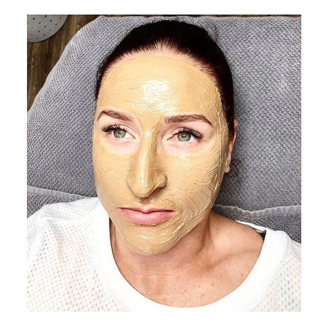 COSMELAN PEEL ⠀⠀⠀⠀⠀⠀⠀⠀⠀ This golden peel involves a two-step process; ⠀⠀⠀⠀⠀⠀⠀⠀⠀ •• Step 1 •• ⠀⠀⠀⠀⠀⠀⠀⠀⠀ The first step involves the application of a thick, mud-like mask by a professional. This mask contains Azelaic Acid, Kojic Acid, Phytic Acid, Ascorbic Acid, Arbutine, and Titanium Dioxide. The mask should remain on the face for 6-10 hours, but the total amount of time depends on your skin type and the amount of hyperpigmentation being treated. ⠀⠀⠀⠀⠀⠀⠀⠀⠀ •• Step 2 •• ⠀⠀⠀⠀⠀⠀⠀⠀⠀ Cosmelan 2 helps to maintain the results achieved with the Cosmelan Peel applied by US while preventing the appearance of new dark spots and areas of hyperpigmentation. ⠀⠀⠀⠀⠀⠀⠀⠀⠀ HOW DOES IT WORK? ⠀⠀⠀⠀⠀⠀⠀⠀⠀ Cosmelan works to correct hyperpigmentation while regulating the overproduction of melanin in the melanocytes. It inhibits tyrosinase activation within the melanosome and lowers the oxidative stress, which reduces the production of melanin. ⠀⠀⠀⠀⠀⠀⠀⠀⠀ When the mask is applied and left on for the prescribed amount of time, you may see up to 95% reduction in the skin's pigmentation on the surface of the skin within 30 days. ⠀⠀⠀⠀⠀⠀⠀⠀⠀ || If you are ready to transform your skin, book your Cosmelan Mask Treatment via our website today! ||