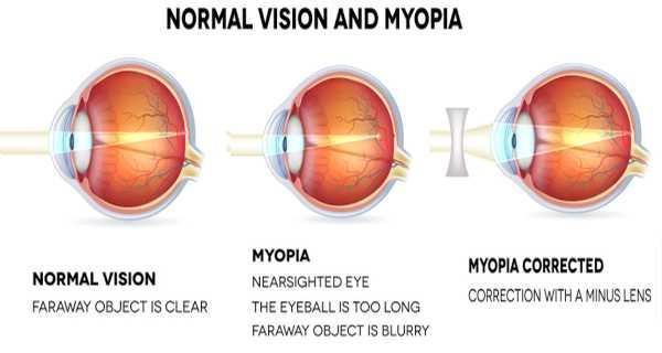 Myopia image.jpg
