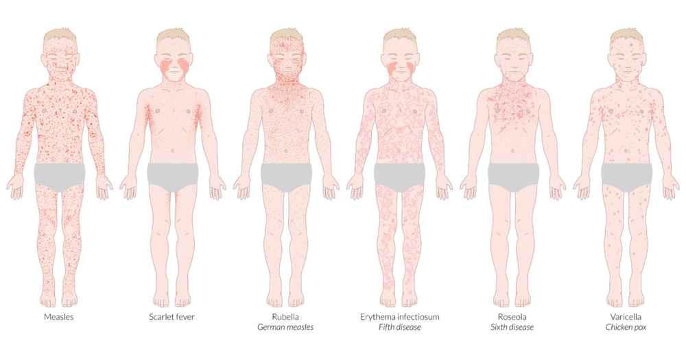 This image represents classic pediatric exanthem diseases, demonstrating the distribution and  morphological characteristics of the exanthem for the differentiation of these diseases, and can be found within the AMBOSS Pediatrics Shelf.