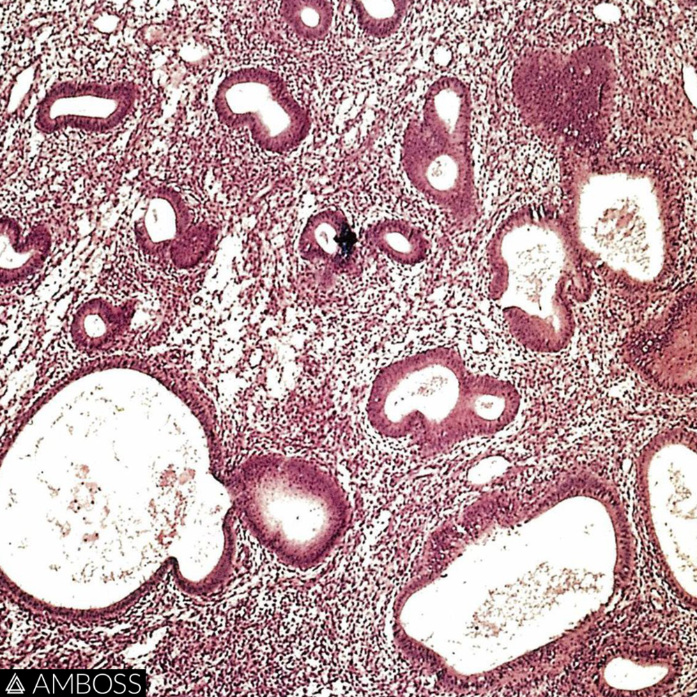 The image shows an H&E stain of endometrial tissue that has been obtained from a fractional curettage.