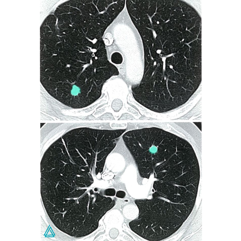 The CT scan of the lung (transverse section) indicates noncalcified lesions located left ventral and right dorsal, which are lung metastases in breast cancer.