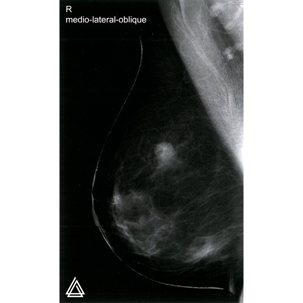 Mammography in breast cancer.
