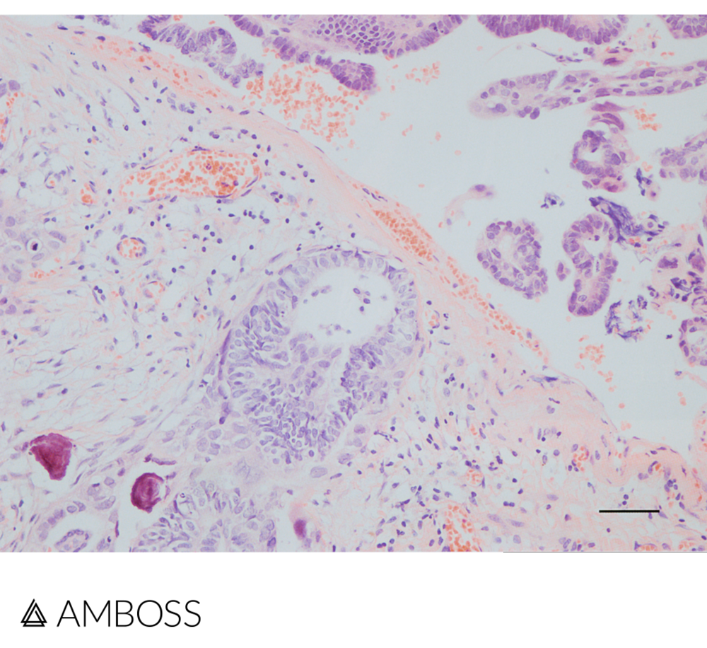 Histopathology slide of the ovary in H&E stain: In addition to papillary tumor cells there are two Psammoma bodies located at the lower edge of the image (highlighted in red). Psammoma bodies are concentric, lamellar calcifications, which are characteristic for serous tumors of the ovary.